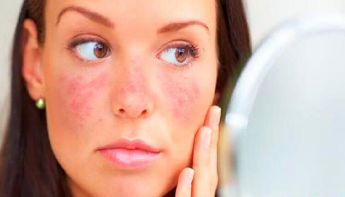 Estiman que 1 de cada 700 salteños padece Lupus