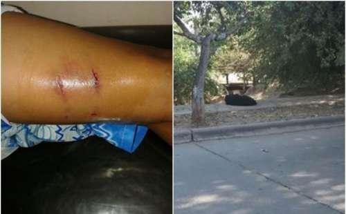 Niño atacado por perros callejeros