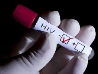 Del total de pacientes con VIH en el país, menos del 3% vive en Salta